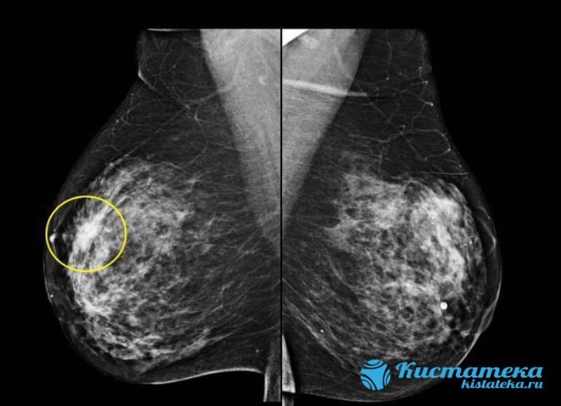 Если в указанный период преобладает железистый компонент по данным маммографии, то выставляется фиброзно-кистозная мастопатия