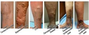 Стадии развития ВРВ на ногах СЕАР