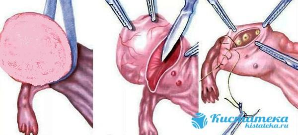 Полостная операция используется в случая, когда утолщение достигло большого размера