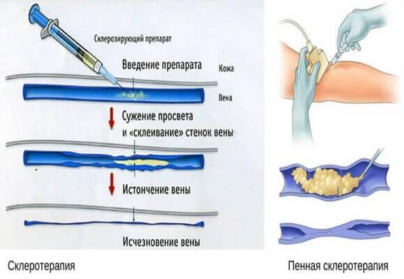 правила введения препарата в вену