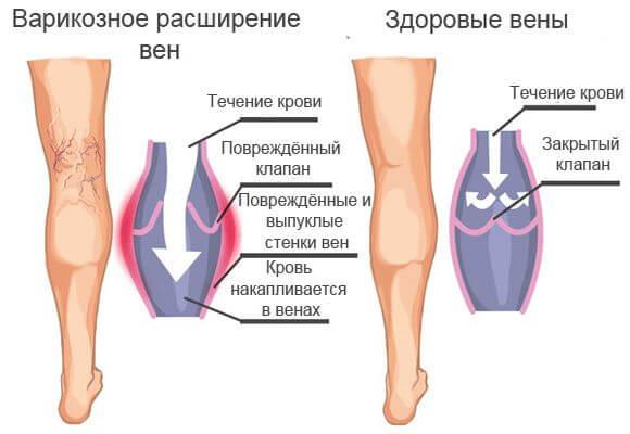 варикозное заболевание вен