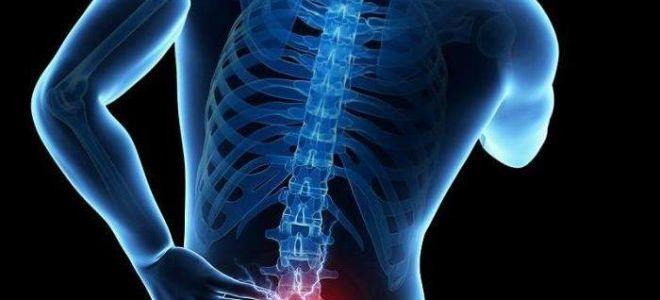 Лечение обострения остеохондроза шейного отдела
