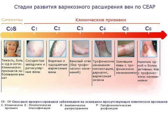 стадии развития в таблице
