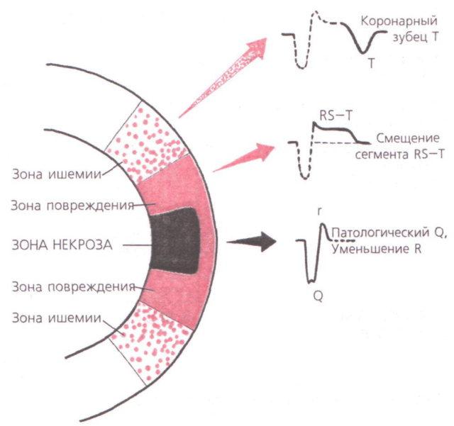 Также известны специфические формы патологии, в частности инфаркт миокарда q, название которому дал определенный зубец на ЭКГ, который фиксируется только при данной форме