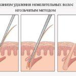 Игольчатый метод удаления волос