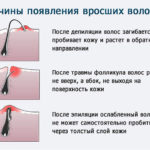 Причины появления вросших волосков