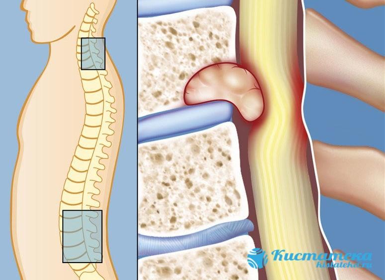 Опуоль в позвоночнике давит на соседние ткани и органы