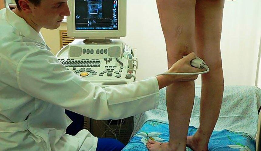 Дуплексное сканирование варикоза вен на ногах