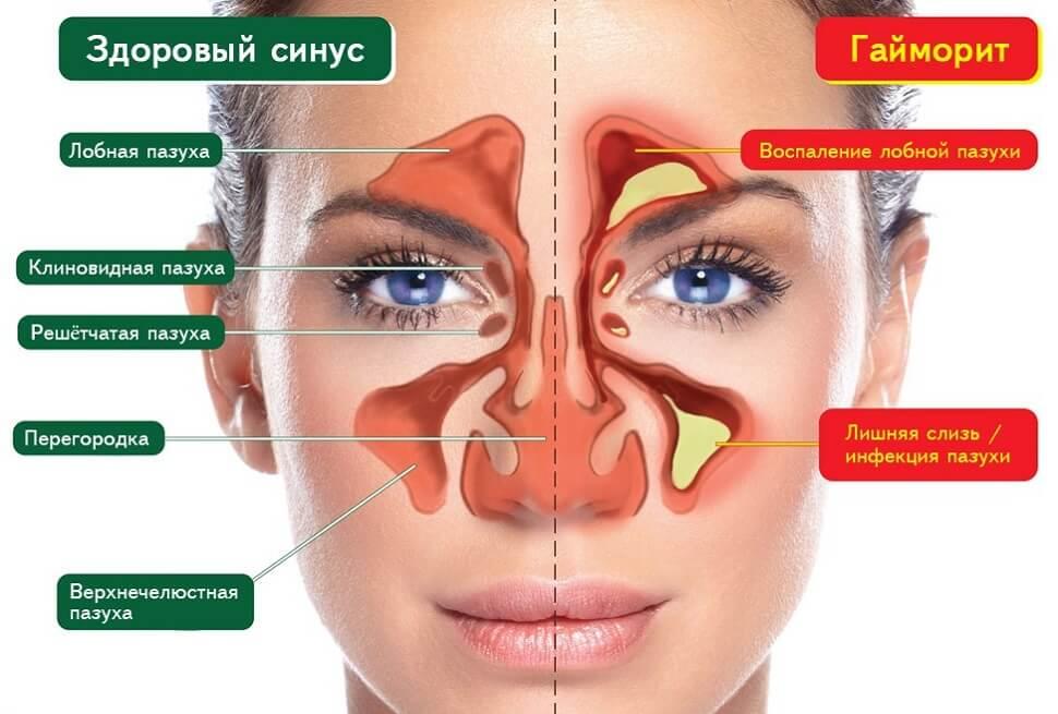 Причины тромбоза венозных синусов