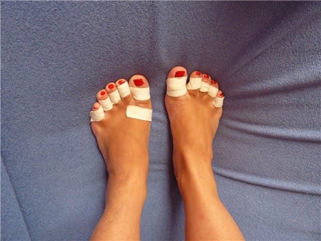 Новообразования на ступнях: как быть?