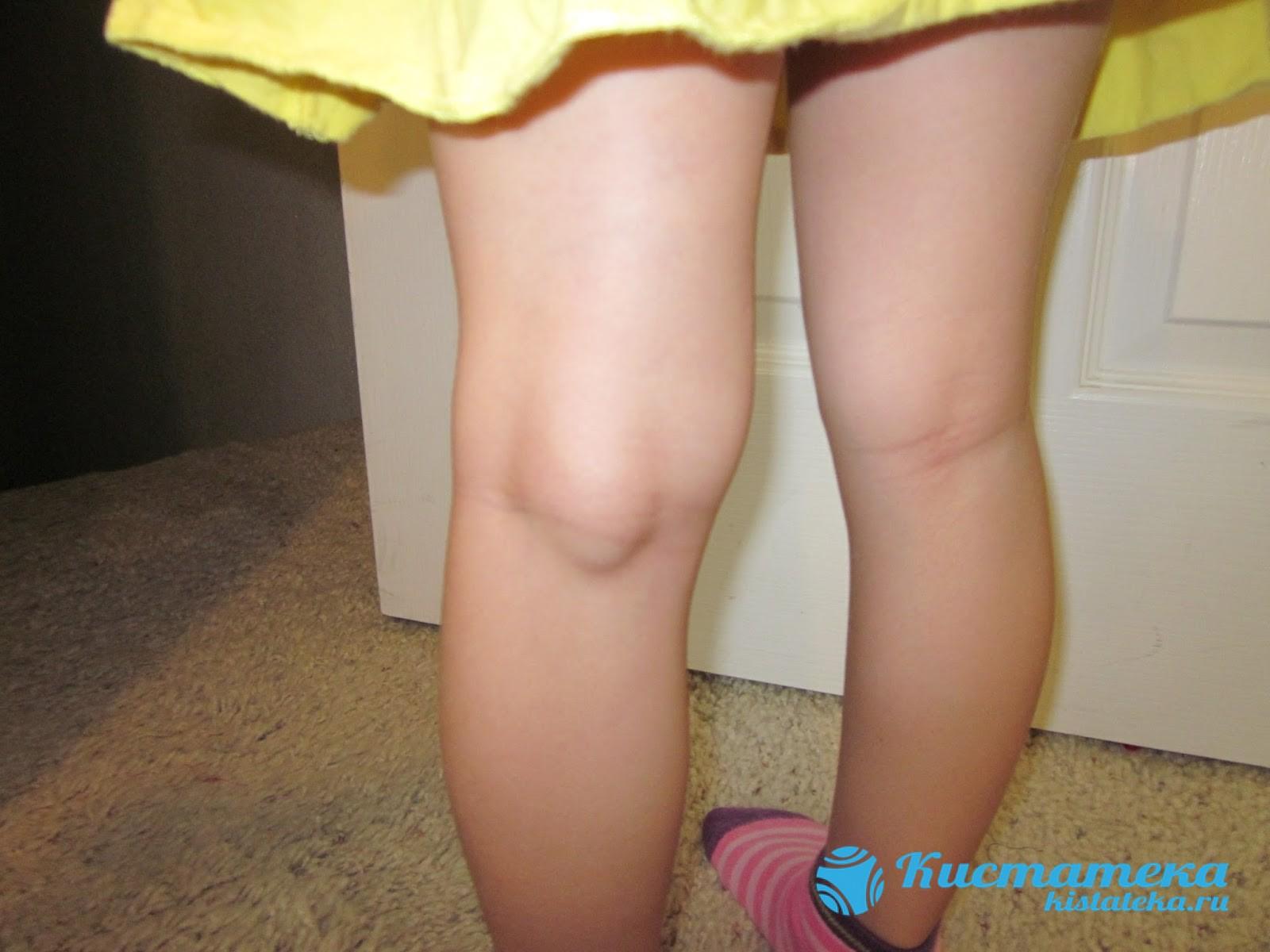 Полость локализуется под коленом на задней суставной стенке