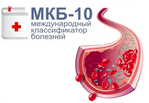 мкб 10 код для варикоза