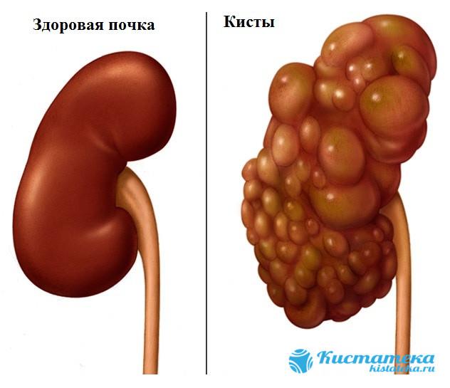 Часто патология оватывает всю поверность органа