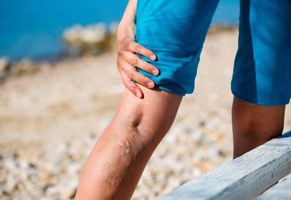 Варикозный недуг ног