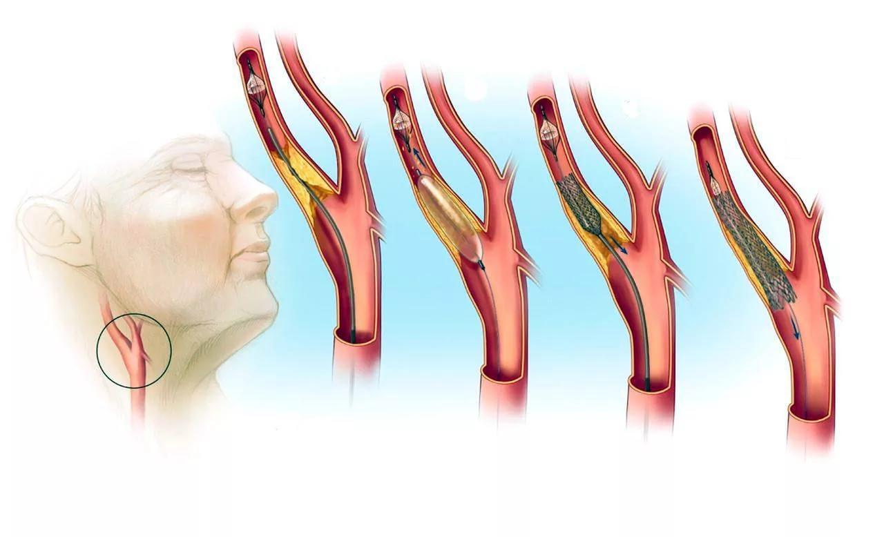Во время диагностики требуется отличить атеросклероз от иных схожих по симптоматике недугов