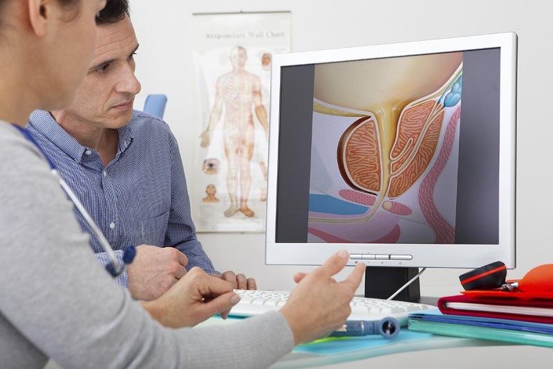 Варикоцеле операция