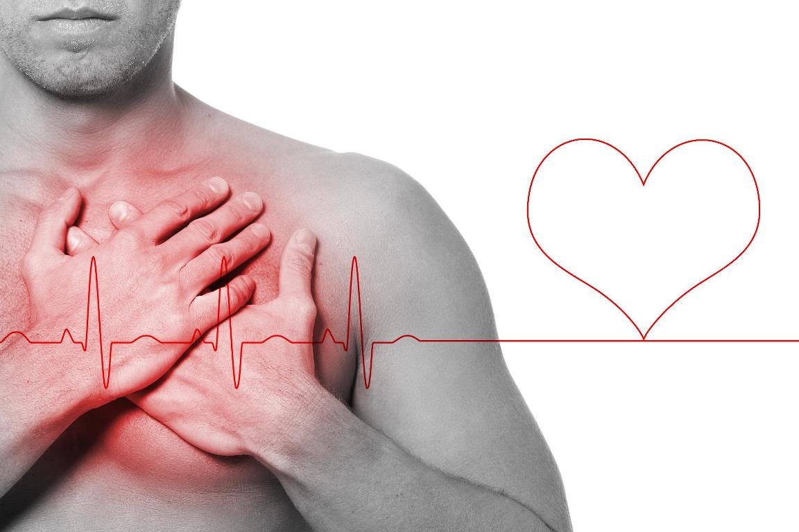 Симптомы, лечение и первая помощь при аритмии сердца