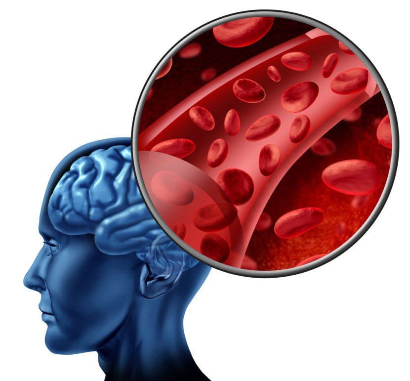 Поскольку стенки сосуда повреждены со всех сторон, холестериновые бляшки покрывают сосуд равномерно