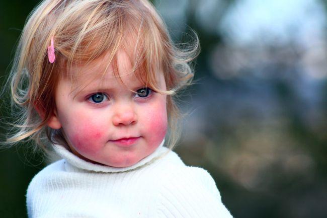 красные щеки у ребенка при аллергиии