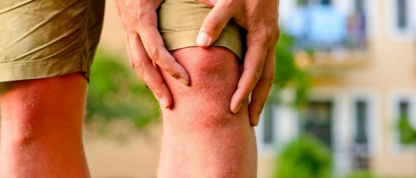 Болят колени варикоз