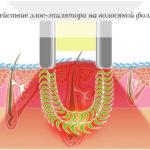 Воздействие ЭЛОС-эпилятора на волосяной фолликул