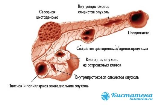Капсула состоит из тканей эпителия и имеет круглую либо вытянутую форму
