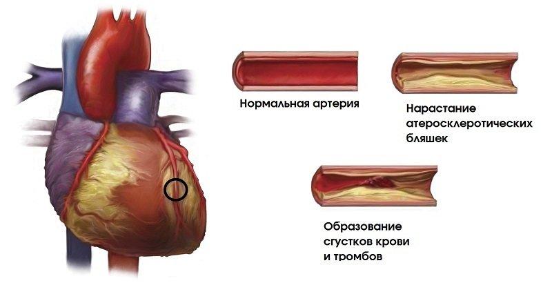Симвакард показывает хорошую эффективность в составе комплексной терапии.