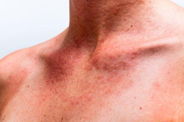 Нельзя применять троксевазиновую мазь при нарушении кожных покровов