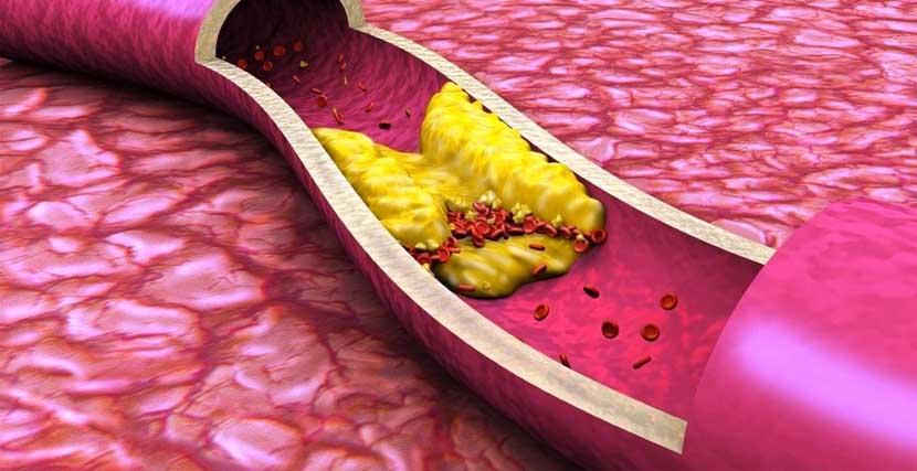 ateroskleroza sosudov lechenie