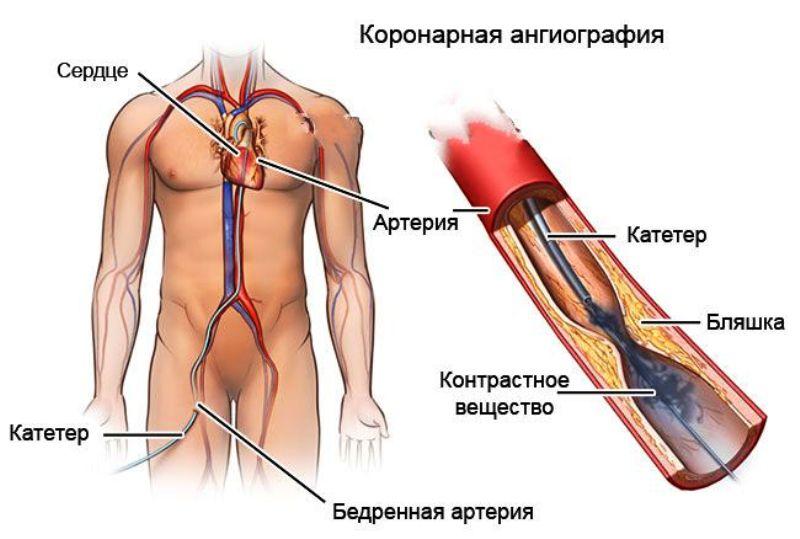 КАГ (коронарная ангиография)
