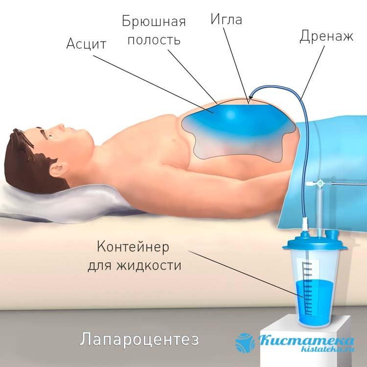 Эффективным методом выведения скопившейся жидкости и снижения давления в брюшине является лапароцентез