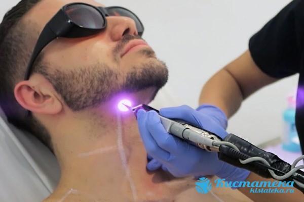 Удаление атеромы лазером обычно проводится в те случая, когда она располагается на видны для окружающи места (например, на лице)