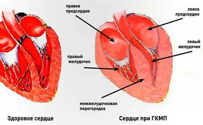 Расположение передней стенки левого желудочка