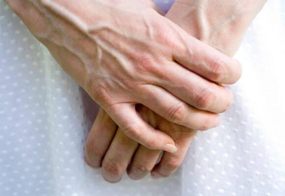 выпуклые вены на руках