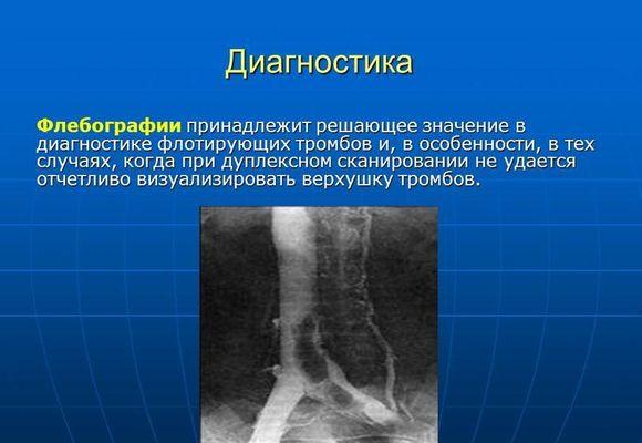 Диагностика флотирующего тромба