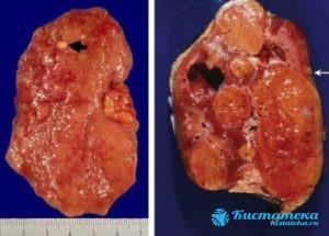 При папиллярном образовании существует риск внутреннего кровоизлияния