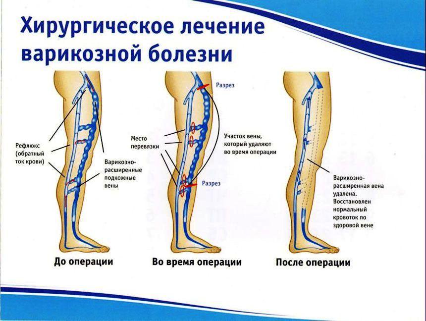Флебэктомия при варикозе нижних конечностей