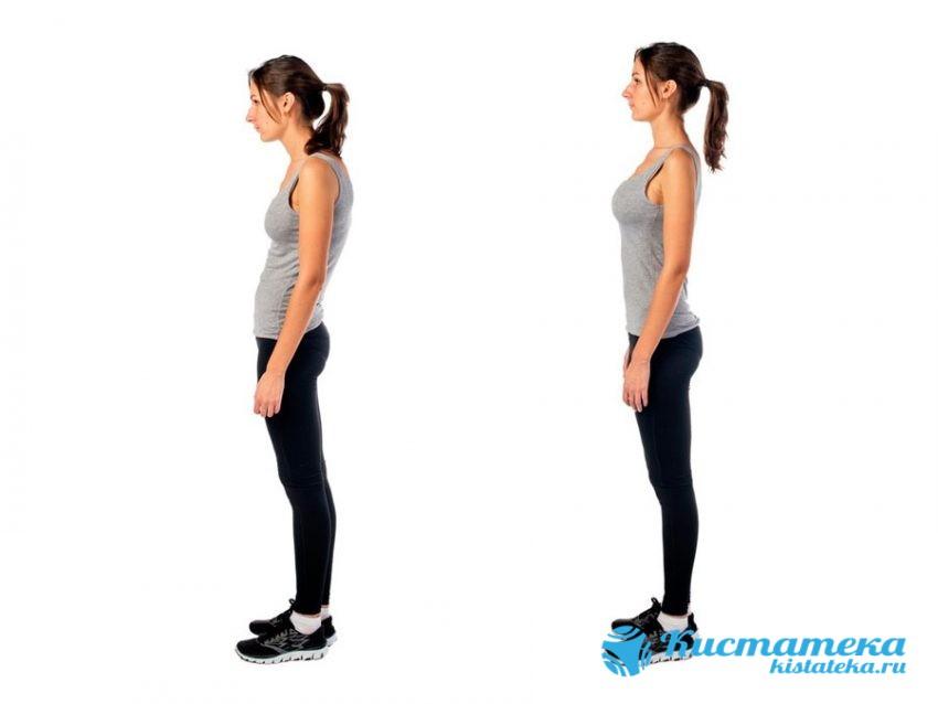 Помимо боли в поодке будет заметна повышенная чувствительность в области спины, она будет слегка сутулой