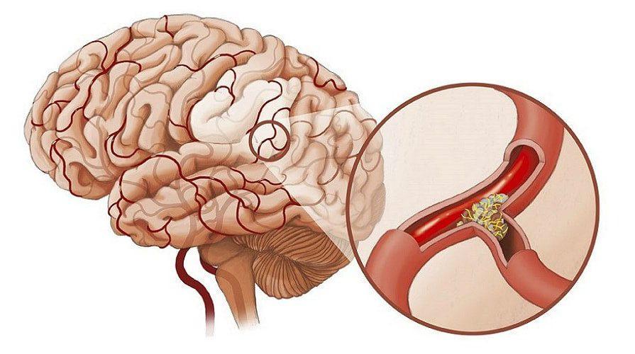 Наиболее страшным и смертельно опасным при атеросклерозе сосудов головного мозга является ишемический инсульт