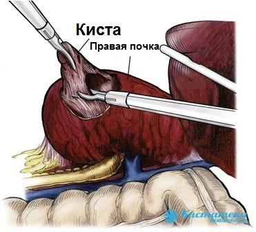 Широко практикуется лапароскопия для удаления кисты и резекции почечной ткани