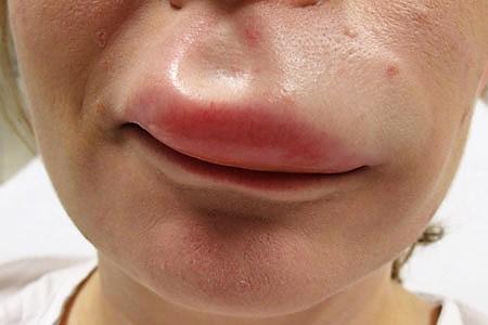отек верхней губы у взрослого