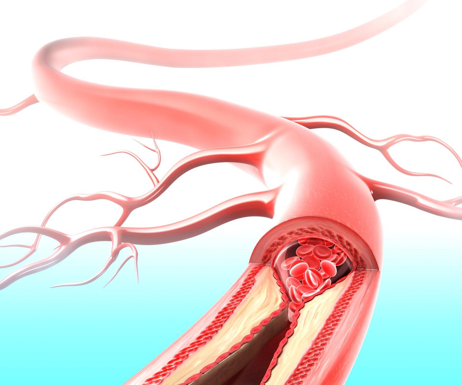 Атеросклероз может приводить к спазму сосудов