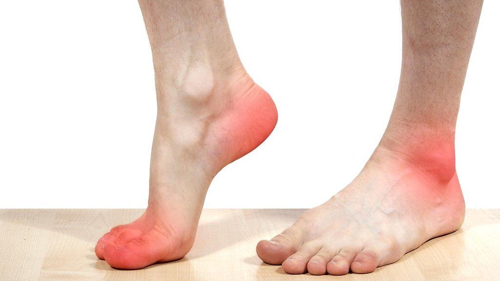 Наиболее часто патология поражает крупные сосуды, расположенные в брюшной полости