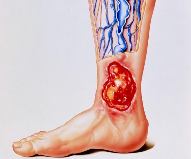 Трофическая язва при тромбофлебите