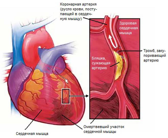 Симптомы нарушения кровообращения сердца