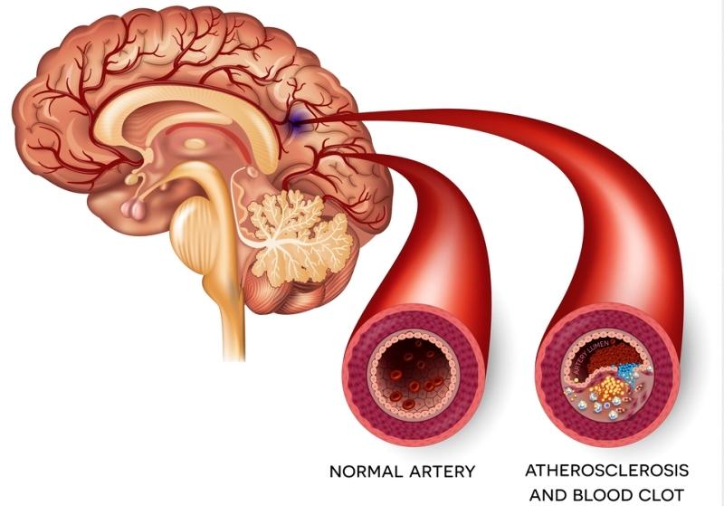 Атеросклероз СГМ