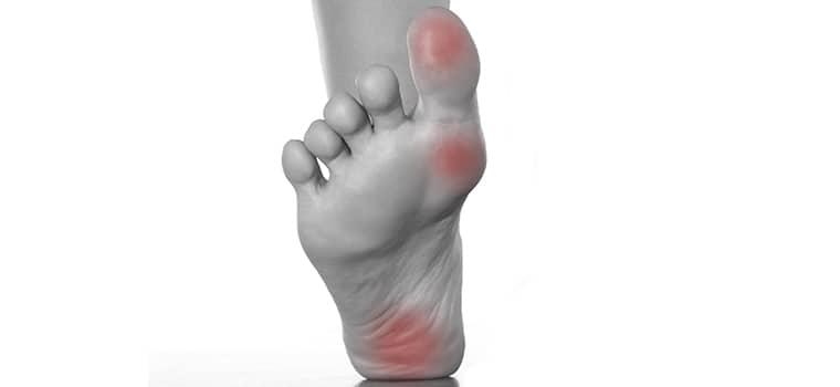 Виды мозолей на ноге