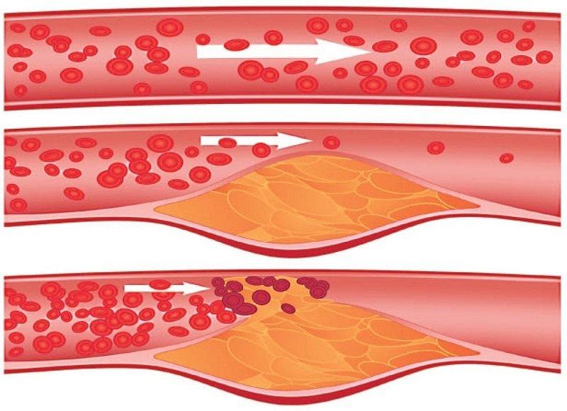Препарат, в составе комплексного лечения, оказывает максимальное воздействие на атеросклероз.
