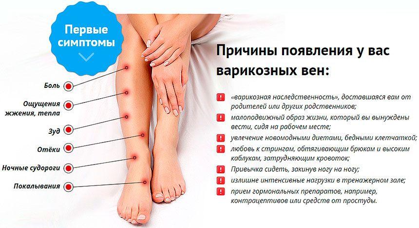 Симптоматика варикоза вен нижних когнечностей