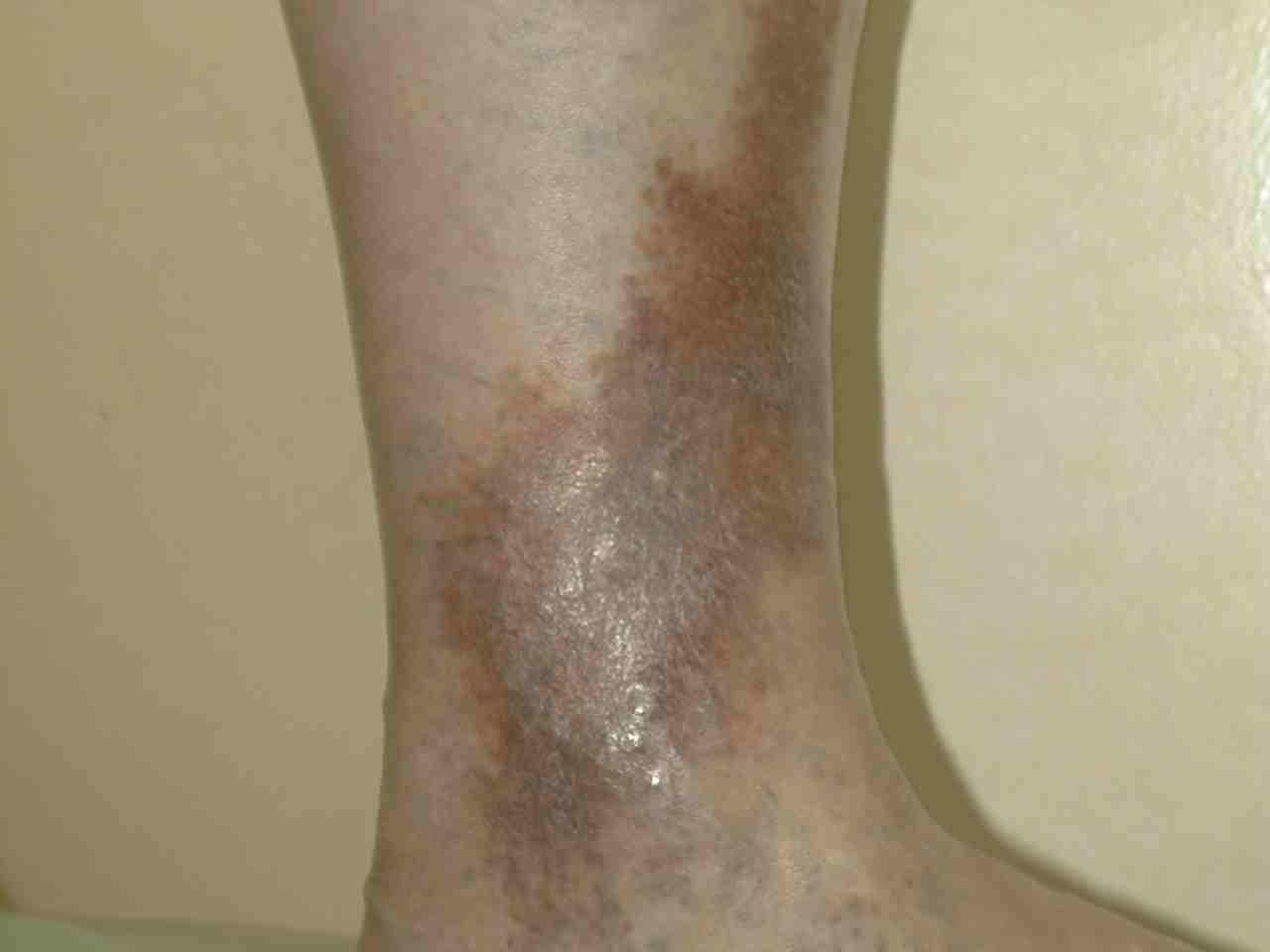 Признаки развития варикозной экземы на ногах